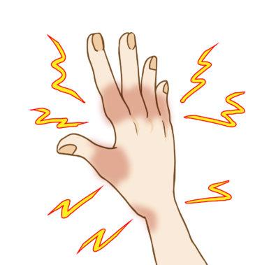 手や指先の痺れは、胸郭出口症候群が原因?症状や予防ストレッチを動画を交えて解説します
